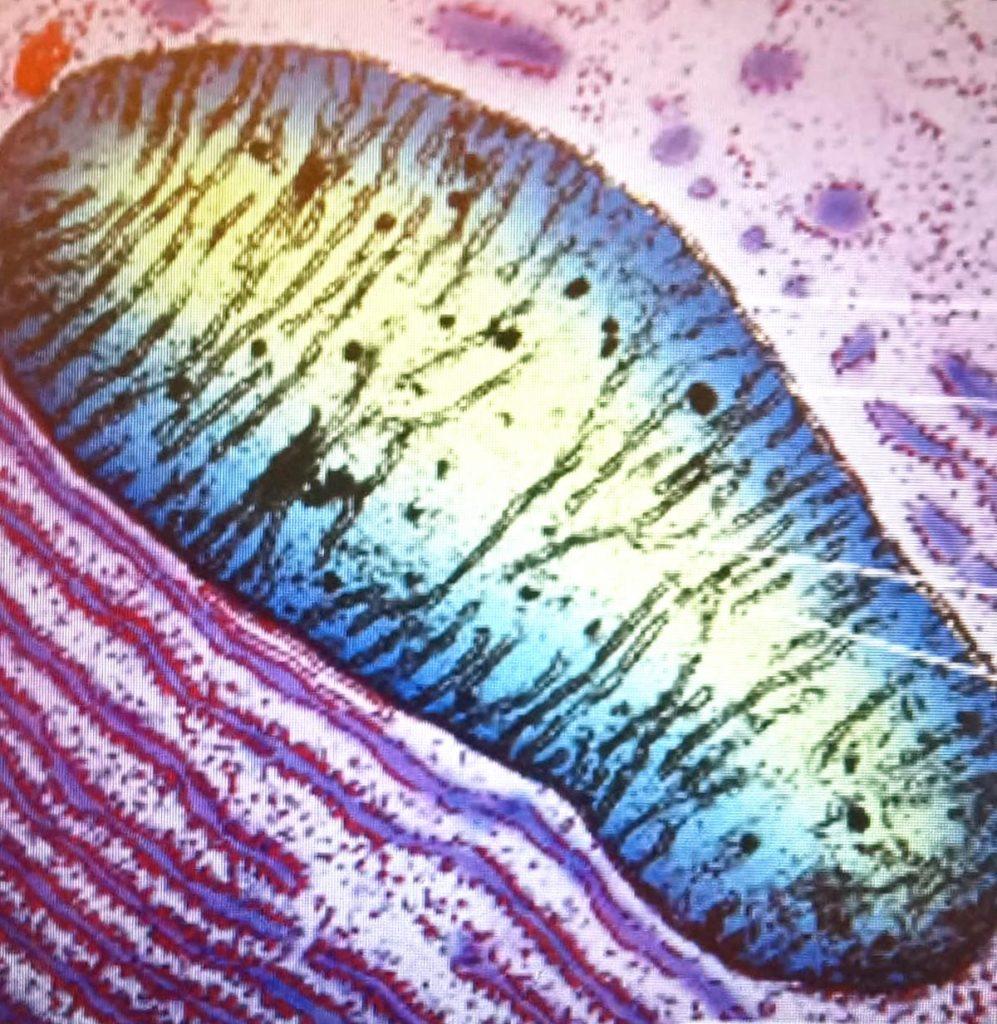 Mitochon mitocondrio