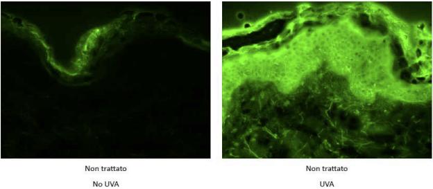 Mitochon - Stress ossidativo, raggi UVA